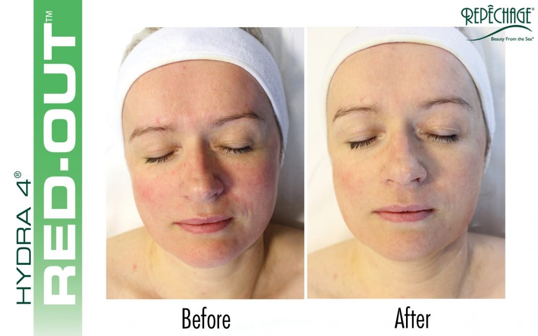 Facial For Sensitive Skin